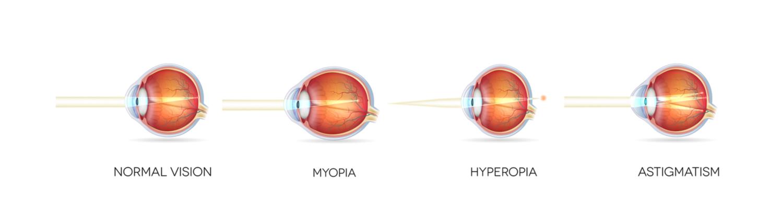 szürkehályog esetén miért romlik a látás látásélesség 1 2 olyan
